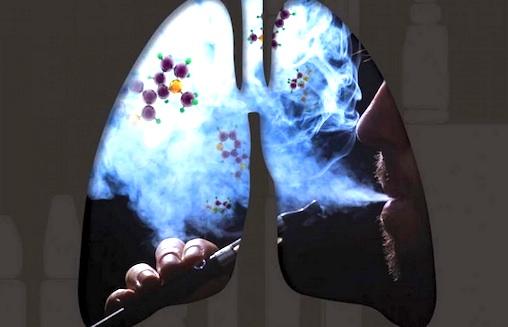 Gli Effetti Sulla Salute Legati Alla Sigaretta Elettronica